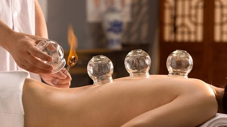 Richmond hill cupping therapy for our patient