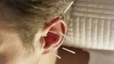 A patient receiving ear acupuncture